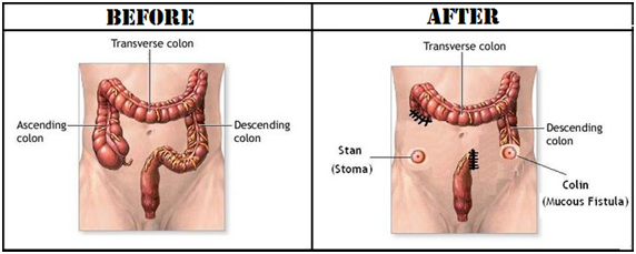 stoma-1